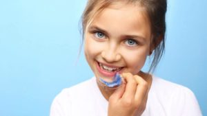 Kind mit einer herausnehmbaren Zahnspange + Ab welchem Alter macht eine Zahnspange Sinn?