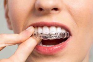 Aligner Therapie – Alles, was Sie zur unsichtbaren Zahnschiene wissen sollten