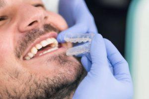 Behandlungsablauf Invisalign© Zahnspange erklärt