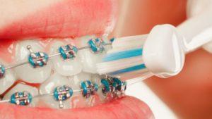 Brackets - Die Zahnspange für Kinder & Erwachsene