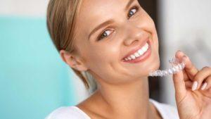 Kosten Invisalign Zahnspange - Was kostet die unsichtbare Zahnspange in Österreich?