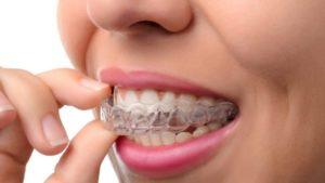 Unsichtbare Zahnspange - Alle wichtigen Infos dazu 1