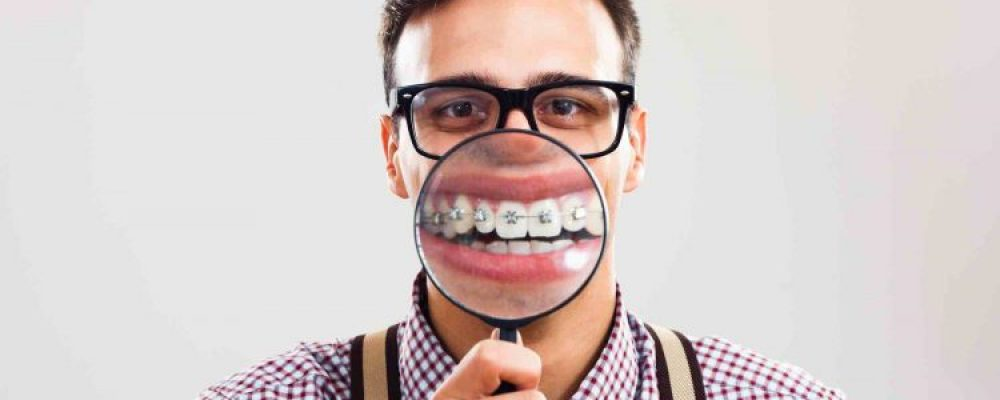 Zahnspangenarten in Österreich - Infos, Arten & Kosten