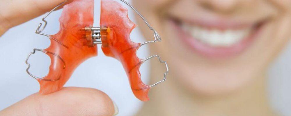 Herausnehmbare Zahnspange - Alle wichtigen Infos