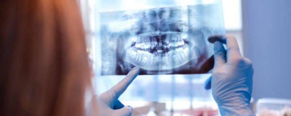 Schiefe Zähne - Was kann man dagegen tun?